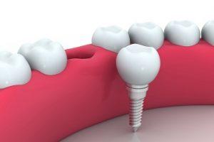 השתלות שיניים בשיטה המובילה